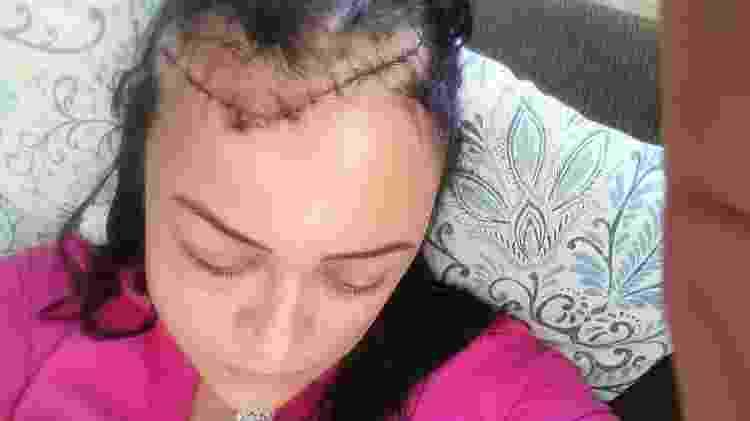 Rafaelle de Almeida, que foi atingida por uma estaca de madeira arremessada contra seu carro em Brasília - Arquivo Pessoal  - Arquivo Pessoal