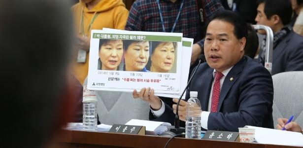 """Deputado oposicionista Lee Yong-joo, do Partido do Povo, mostra montagem com fotos da presidente afastada Park Geun-hye durante audiência da Assembleia National, em Seul. Na montagem está escrito """"Será que as marcas no rosto de Park [assinaladas com círculos nas fotografias] foram por causa de enxerto cosmético?"""