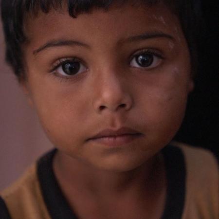As chocantes imagens de crianças vítimas da fome em meio à guerra no Iêmen - Reprodução via BBC