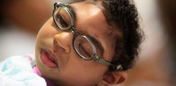 3.nov,2016 - Bebês com microcefalia receberam óculos da Fundação Altino Ventura, no Recife