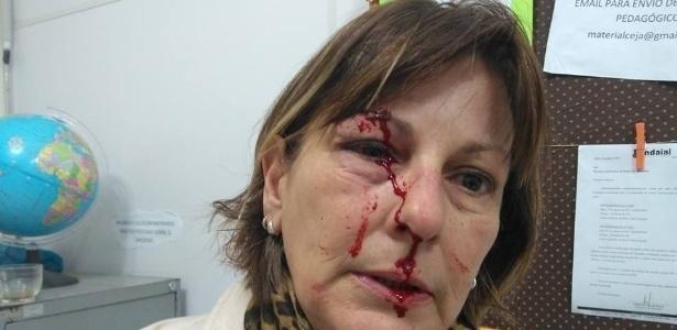 A professora Marcia Friggi publicou numa rede social o estado em que ficou o seu rosto, após sofrer a agressão de um aluno: um corte aberto em um dos supercílios, um olho inchado e o nariz sangrando