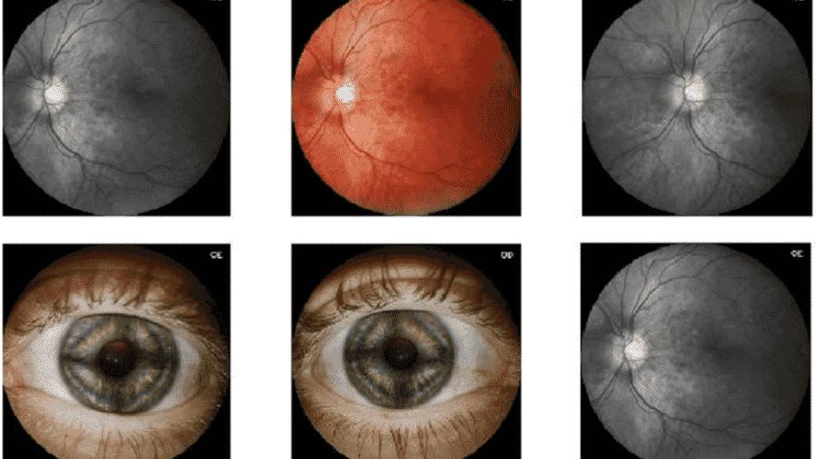 Com apoio do PIPE-FAPESP, empresa de São Carlos criou o Eyer, dispositivo acoplado a um smartphone que examina a retina e detecta retinopatias a um custo mais baixo do que os métodos convencionais - Divulgação