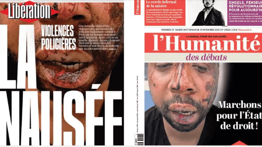 27.nov.2020 - Jornais estampam o rosto do produtor musical Michel Zecler, violentamente agredido no sábado passado por policiais em Paris. As cenas foram captadas pelo circuito interno de câmeras de vídeo de um estúdio de música - RFI