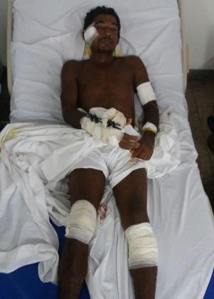 2.mai.2017 - Jose Ribamar Mendes, índio atacado no Maranhão