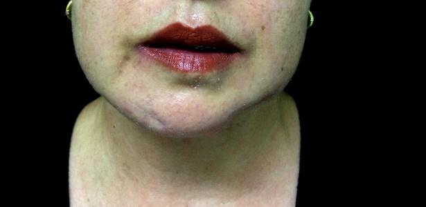 Mulheres vítimas de violência doméstica mostram cicatrizes; projeto em SC faz mutirão gratuito de cirurgias plásticas