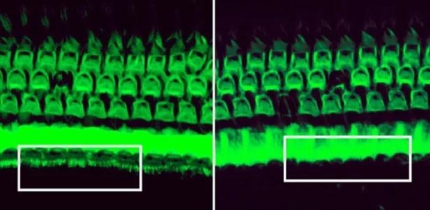 O tratamento com Crispr mostrou preservar os cabelos detectores de som na orelha interna dos camundongos (esquerda). Sem o tratamento, estes cabelos desaparecem (direita)  - Gao et al. /Nature