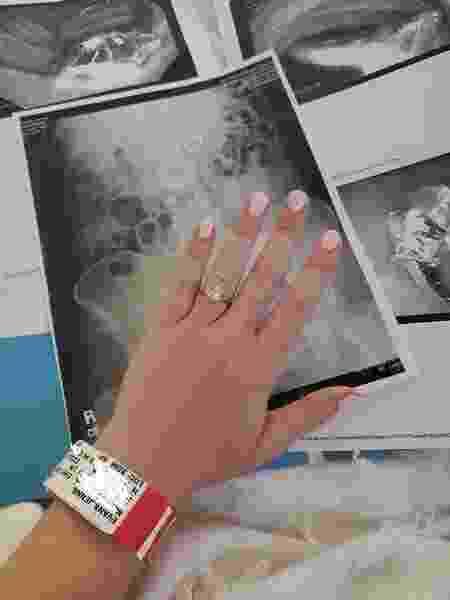 Jenna Evans mostra anel que foi engolido e exame que aponta onde a joia foi parar - Facebook