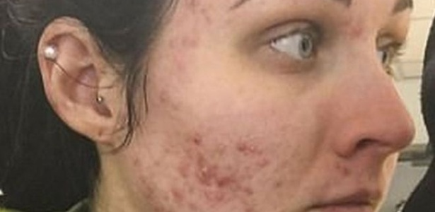 Judith postou uma foto no Instagram antes de começar o tratamento com um medicamento controlado contra acne severa - Judith Donald