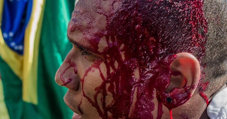 24.mai.2017 - Manifestante sai ferido de confronto com a Polícia Militar durante protesto contra o presidente Michel Temer, nas ruas da Esplanada dos Ministérios, em Brasília