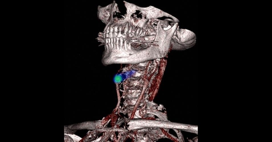 Este exame feito por Nicholas Evans, da Universidade de Cambridge, mostra, em verde, um vaso sanguíneo bloqueado no pescoço de uma pessoa. Este vaso leva sangue para o cérebro. Se bloqueado, ele pode danificar partes do cérebro. E o nome do foto não poderia ser outro: 'Detectando um derrame'