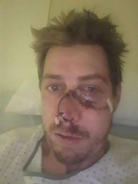 Vincent Saubion, 36, foi atacado por veado quando caçava na cidade francesa de Lesperon - Reprodução