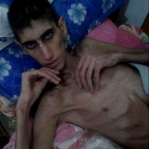 Morador de Madaya, cidade na Síria onde as pessoas estão morrendo de fome