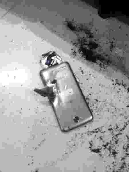 Celular explode, e criança tem queimaduras de segundo grau em Sumaré (SP) - Arquivo pessoal