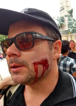Em segundo dia de protestos, três ficam feridos em frente à Assembleia Legislativa do RS