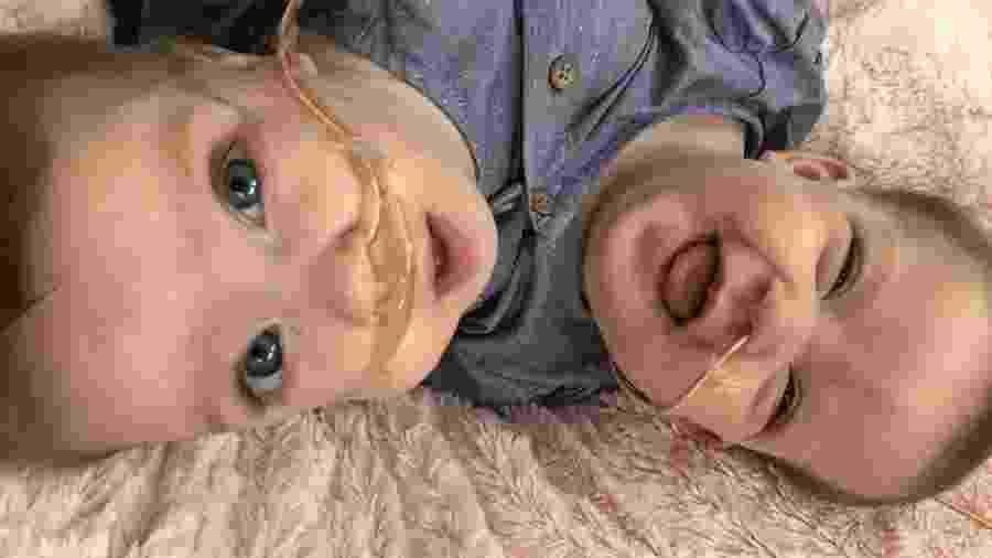 As gêmeas Sarabeth e Amelia Irwin antes da cirurgia de separação - Reprodução/GoFundMe