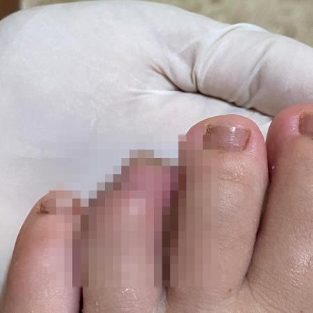 Jovem mostra como ficou o dedo após ser atacada por piranhas em praia no Pará - Arquivo Pessoal