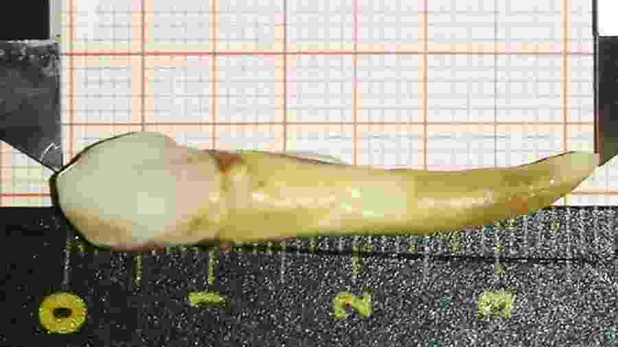 Este é, até o momento, o dente humano mais longo já registrado na história - Divulgação/Dr. Max Lukas