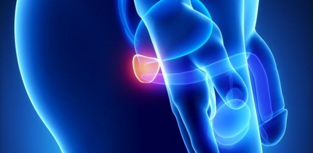 exame phi para prostata