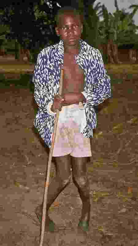 Menino com konzo, fotografado no Zaire (atual República Democrática do Congo) em setembro de 1986 - Thorkild Tylleskar