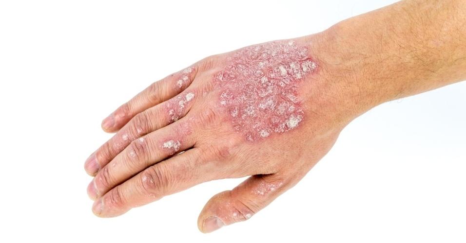 Dermatite; pele