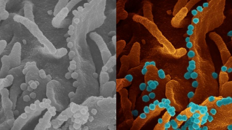 Imagem do coronavírus deixando uma célula infectada para se multiplicar, divulgada por médicos do Instituto Nacional de Saúde (NIH) dos EUA - Divulgação/NHS