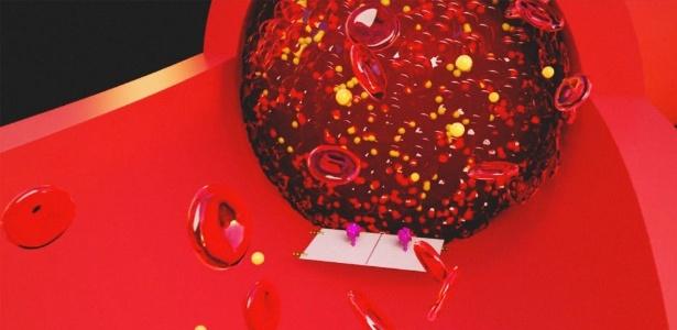 Nano robôs bloqueiam suprimento de sangue em células cancerosas.