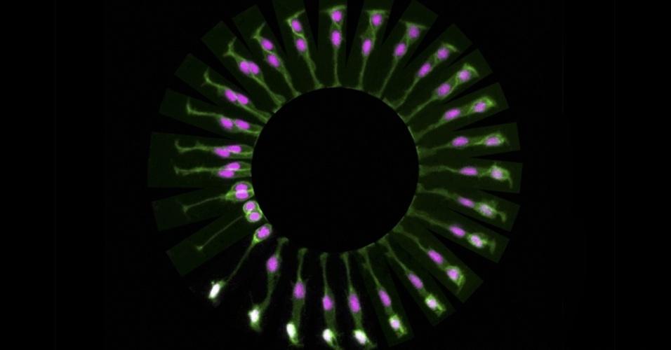 O padrão circular mostra os estágios diferentes de uma célula-tronco se dividindo em duas dentro do cérebro de um peixe-zebra. A foto foi feita por Paula Alexandre, do University College, de Londres. O círculo tem apenas cerca de 250 micrômetros (0,25 mm) e cobre um período de nove horas. Começando na parte de baixo à esquerda, a célula se divide para se transformar em duas células diferentes encontradas no cérebro