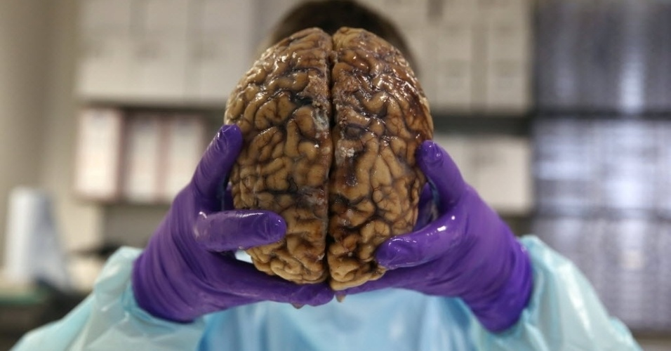 14.jun.2016 - O porfessor Steve Gentleman posa com um cérebro humano no Centro de Esclerose Múltipla e Parkinson do Colégio Imperial de Londres, na Inglaterra