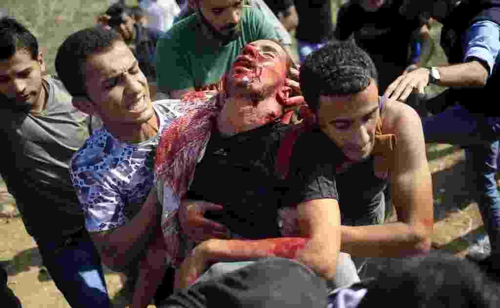 9.out.2015 - Manifestante palestino é retirado por companheiros depois de ter sido ferido durante confrontos com as forças de segurança israelenses perto da fronteira entre Israel e a faixa de Gaza. Pelo menos cinco palestinos morreram e mais de 30 ficaram feridos durante os confrontos. Em Gaza, o líder do Hamas, Ismail Haniyeh, afirmou que a violência atual é uma nova Intifada, a exemplo da revolta palestina de 1987 e 2000 - Mohammed Abed/AFP