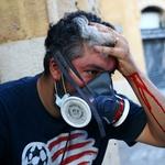9.ago.2020 - Manifestante fica ferido durante protesto neste domingo em Beirute, no Líbano - Hannah McKay/Reuters