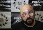 André Ávila/Agência RBS/Estadão Conteúdo