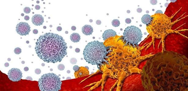 Método testado em estudo   Nova imunoterapia leva esperança a pacientes com câncer de próstata