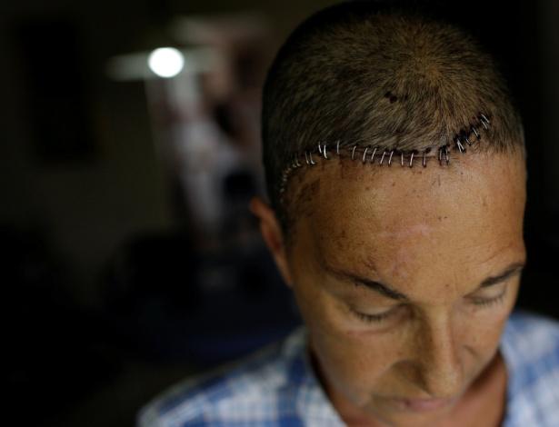 Yolyter Rodriguez, 56, dona de casa e mãe de três filhos, foi ferida na cabeça durante protesto contra Nicolás Maduro, na Venezuela - UESLEI MARCELINO/REUTERS