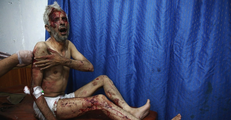 27.jul.2015 - Homem ferido recebe tratamento em centro médico de Douma, na Síria. Milícias curdas no país acusaram nesta segunda-feira a Turquia de bombardear suas posições, em meio à crescente tensão com Ancara desde que iniciou sua ofensiva contra o Estado Islâmico e os rebeldes curdos do PKK