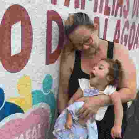 Ana com a neta Dayara: menina não consegue sentar sozinha, não fala, não anda, é cardiopata, e está desenvolvendo glaucoma no olho esquerdo - BBC News Brasil