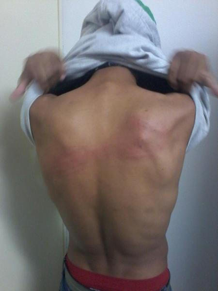 Jovem foi agredido por seguranças em 2015 - Reprodução/SBT RS