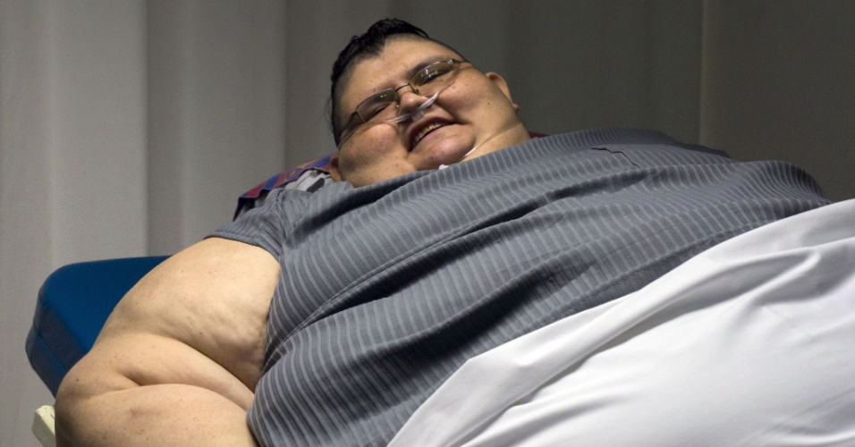 21.dez.2016 - O mexicano Juan Pedro, considerado o homem mais obeso do mundo, tentará em 2017 reduzir à metade seus 590 quilos com um bypass gástrico, informou nesta quarta-feira seu médico, José Antonio Castañeda Cruz
