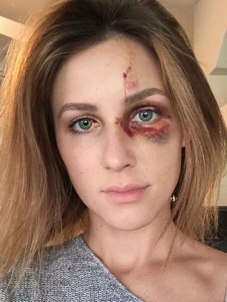 Melissa Gentz acusa o ex-namorado de agredi-la nos EUA - Reprodução/Instagram