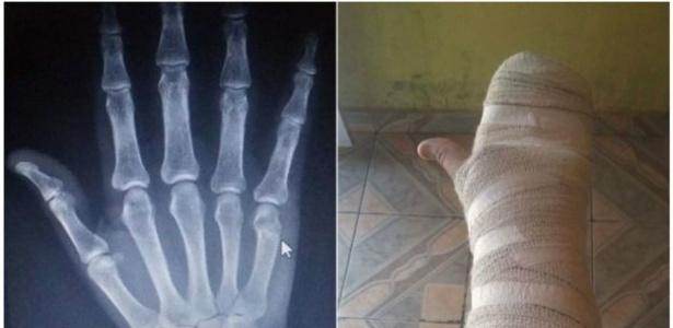 Mão ferida de um motorista de Uber em São Paulo, vítima de assalto - Arquivo pessoal