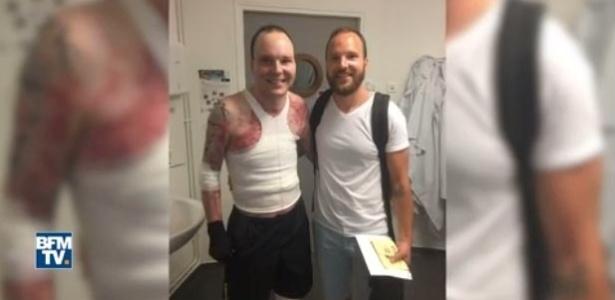 Imagem mostra os irmãos gêmeos após série de procedimentos de transplante de pele