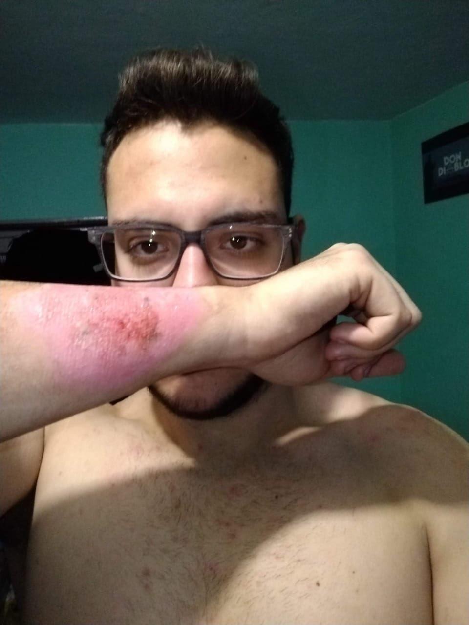 Tatuagem Argentino Usa Ralador De Queijo Para Remover