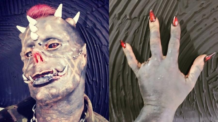 Michel Faro Prado já realizou uma série de procedimentos e chegou a remover um dedo - Reprodução/Instagram/Montagem UOL