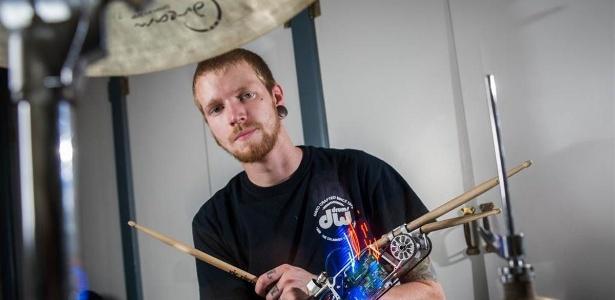 Após ter o braço amputado, Jason Barnes ampliou suas habilidades musicais com uma prótese tecnológica