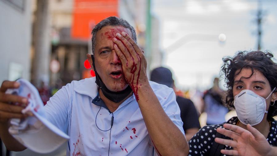 Homem tenta estancar sangue após ser atingido no olho por uma bala de borracha - INSTAGRAM @hugomunizzz via REUTERS