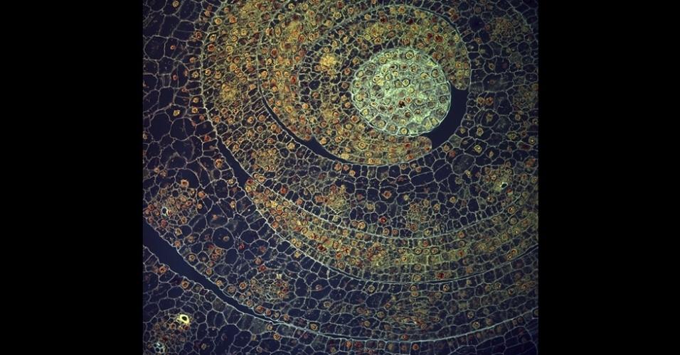 'Esta imagem lembra o trabalho de Gustav Klimt, um belo visual que lembra um mosaico', disse Anne Deconinck, do Instituto Kock. Esta micrografia confocal feita por Fernan Federici, da Pontifícia Universidade Católica do Chile e a Universidade de Cambridge, analisa a parte de dentro de um aglomerado de folhas de uma jovem planta de milho. O vencedor do prêmio será anunciado no dia 15 de março