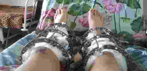 26.mai.2016 - O colombiano Esteban passou vários meses longe de casa, em um país frio e desconhecido, com suas tíbias fraturadas e envolvidas por arames e dispositivos cujo objetivo era aumentar a extensão desses ossos - BBC - BBC