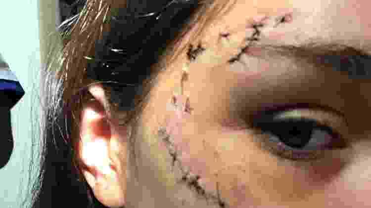 A argentina Lara Sanson, de 17 anos, foi mordida pelo cachorro do amigo - Reprodução - Reprodução