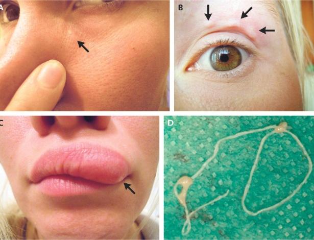 As imagens da movimentação do parasita foram registradas em selfies pela russa - Reprodução