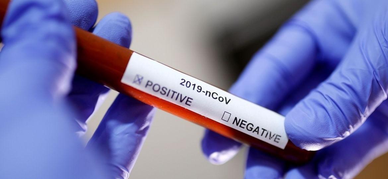 OMS: Brasil e mais 8 países confirmam casos de coronavírus somente nas últimas 24 horas - Reuters