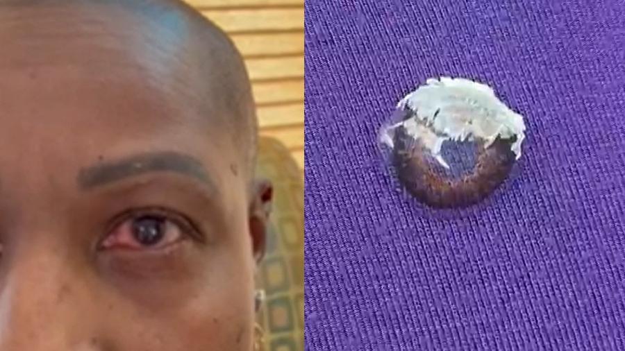 Mulher nos EUA estava utilizando lentes de contato quando confundiu colírio com cola - Reprodução/WXYZ
